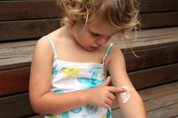 De top vijf kinderallergieën